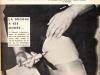 1964-seringue-dans-cuisse-w